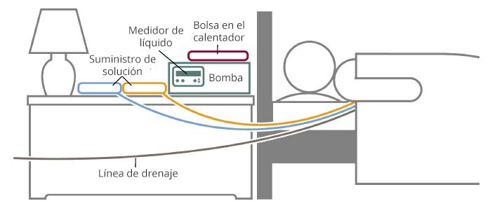 Dibujo de una persona acostada al lado de una mesa de noche con una bolsa de calentamiento, un medidor de líquido, una bomba y dos fuentes de suministro de solución. Las líneas conectan los suministros de la solución a la persona. Una línea de drenaje está conectada de la persona y sale fuera del marco del dibujo.
