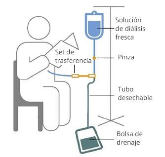 Dibujo de una persona leyendo durante la diálisis peritoneal ambulatoria continua. Una bolsa de solución de diálisis nueva cuelga de un atril y se conecta a un tubo que tiene una pinza. El tubo se conecta a un set de transferencia, un tubo desechable que se conecta a otro tubo que ingresa al abdomen de la persona. El tubo también se conecta desde el set de transferencia a la bolsa de drenaje en el piso.