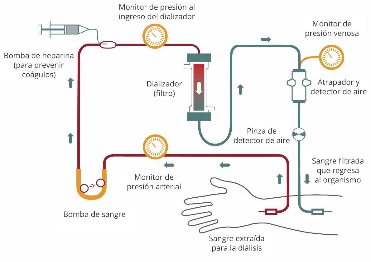 Diagrama del flujo sanguíneo durante la hemodiálisis desde el brazo hacia el tubo, pasando por un monitor de resión, una bomba de sangre y una bomba de heparina, que evita la coagulación. La sangre fluye pasando por otro monitor de presión antes de ingresar al dializador o filtro. La sangre filtrada continúa pasando por un monitor de presión venosa, un atrapador y un detector de aire, y una pinza de detector de aire, y regresa al brazo.