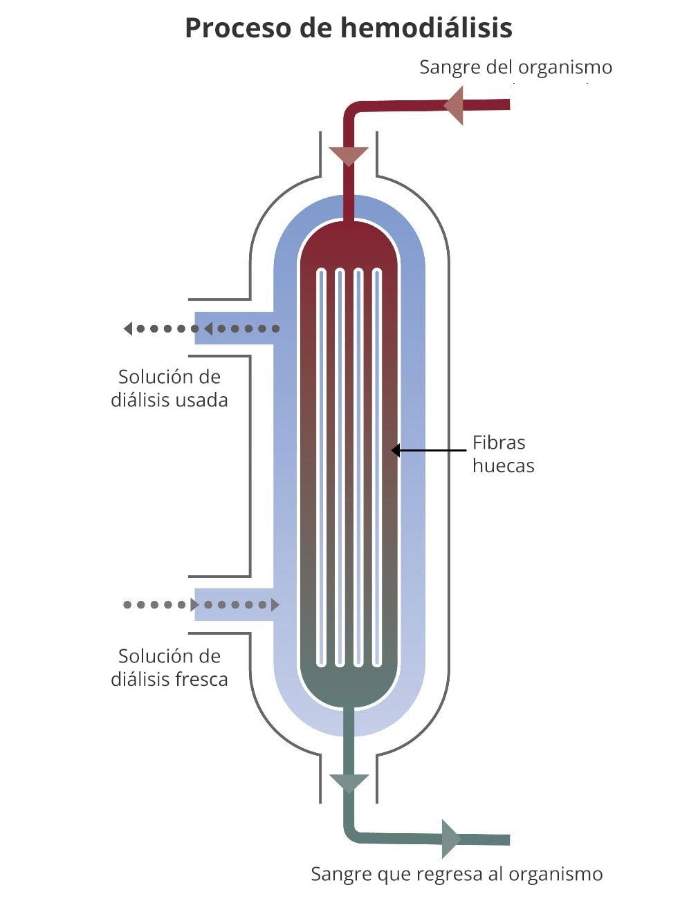 Diagrama del flujo sanguíneo desde la parte superior del dializador hasta la parte inferior. La solución de diálisis fluye en dirección opuesta, de abajo hacia arriba. La sección transversal muestra fibras huecas dentro del dializador, donde pasan las toxinas de la sangre a la solución.