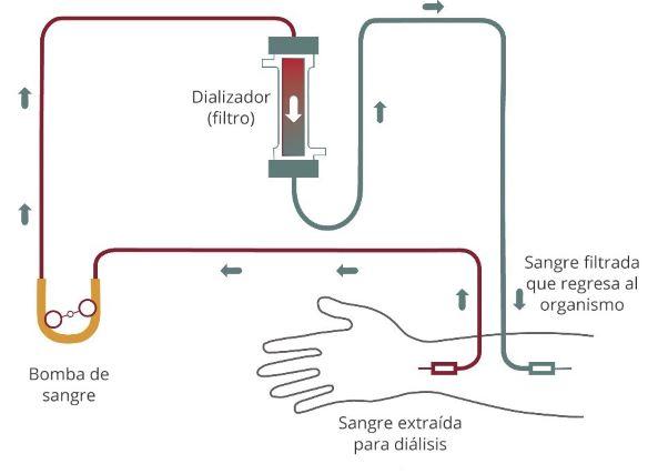 Diagrama del flujo sanguíneo de la hemodiálisis que va del brazo a un tubo y pasa por una bomba de sangre hasta el filtro. La sangre filtrada regresa al brazo.