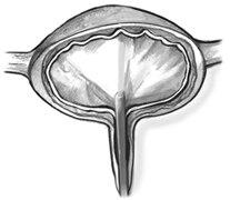 Dibujo de la sección transversal de una vejiga con un cistoscopio visible en la uretra. El dibujo incluye el siguiente texto: ¿Qué descubre el médico al examinar el interior de la vejiga con un cistoscopio? El examen puede ayudarle a detectar si hay cáncer en la vejiga. Además, si hay una piedra en la vejiga, el médico puede detectarla y removerla con el cistoscopio.