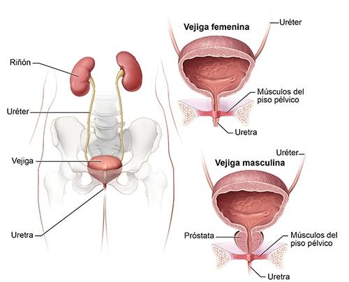 piedras en la próstata y la vejiga como en