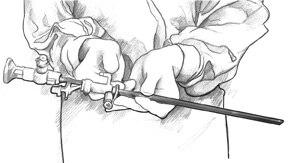 Dibujo lineal de un cistoscopio en las manos de alguien puesto vestimenta quirúrgica.