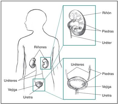 acido urico dolor valores acido urico pediatria que puedo tomar natural para la gota