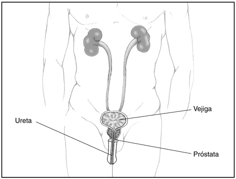 posible erección sin vejiga y próstata