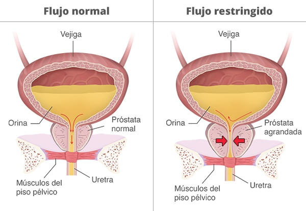 Two bladders showing normal versus restricted urine flow as a result of an enlarged prostate and a constricted urethra.
