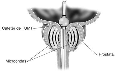 tipos de prostatitis como