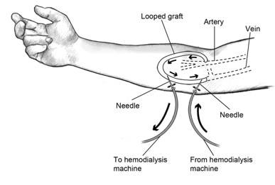 Drawing of an AV graft in the forearm