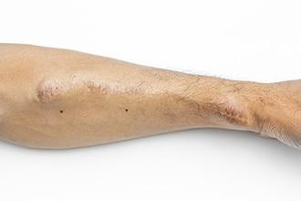 Brazo de una persona que muestra una fístula AV.