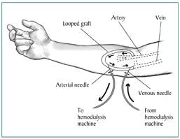 Vascular Access for Hemodialysis | NIDDK
