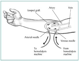 Drawing of a forearm with an AV graft. Needles and tubes are inserted into the tube that connects the artery to the vein. Arrows show direction of blood flow.