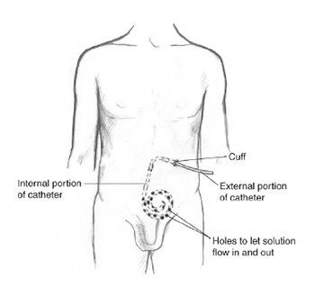 Peritoneal Dialysis Niddk