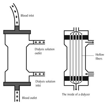 A diagram of the inside of a dialyzer