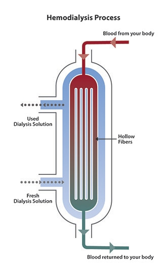 Diagram of blood flow from the top of the dialyzer to the bottom. Dialysis solution flows in the opposite direction, from bottom to top. Cross-section shows hollow fibers inside the dialyzer, where wastes pass from the blood into the solution.
