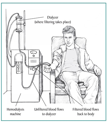 Picture of a teenage boy receiving hemodialysis treatment. Labels point to the dialyzer, where filtering takes place; hemodialysis machine; a tube where unfiltered blood flows to the dialyzer; and a tube where filtered blood flows back to the patient.