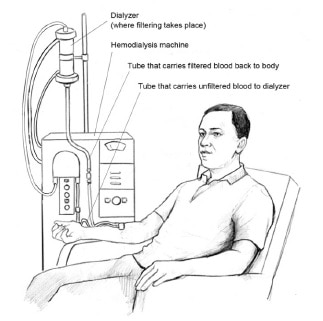 Man sitting in a chair hooked up to Dialysis machine