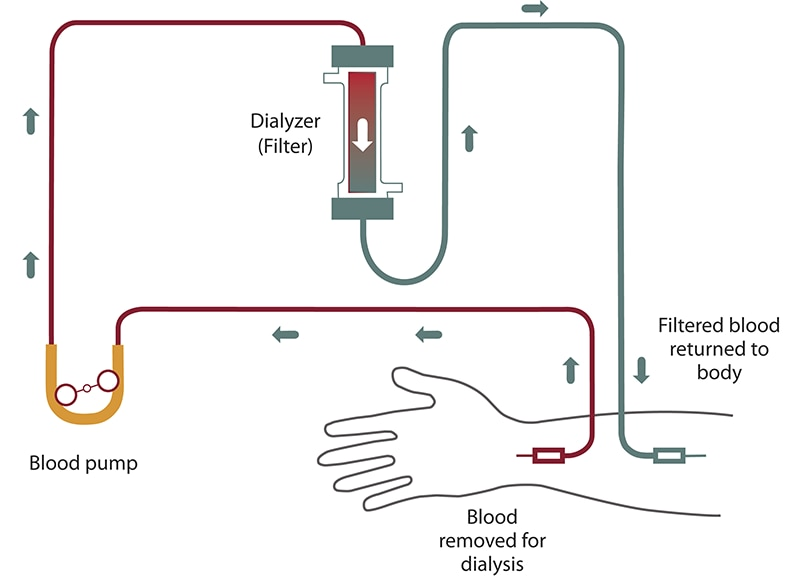 Diagram of hemodialysis blood flow from your arm into a tube and past a blood pump to the filter. Filtered blood flows back into your arm.