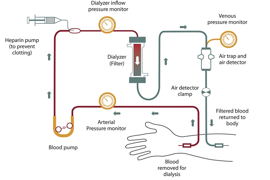 Diagram of hemodialysis blood flow from your arm into the tube, past a pressure monitor, a blood pump, and a heparin pump, which prevents clotting. Blood flows past another pressure monitor before entering the dialyzer, or filter. Filtered blood continues past a venous pressure monitor, an air trap and air detector, and an air detector clamp, and returns to your arm.