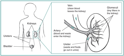 Nephrotic syndrome in adults niddk drawing of the urinary tract in the outline of a male figure with an inset image ccuart Image collections