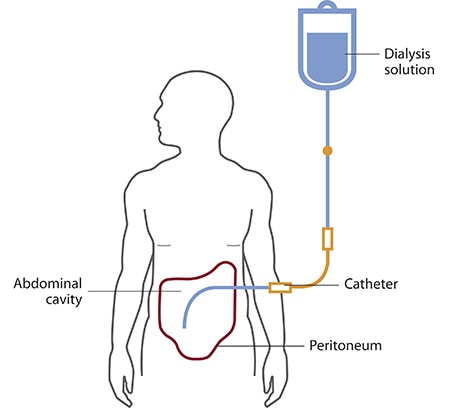 Illustration of a person having peritoneal dialysis. Dialysis solution flowing from a bag into a tube through a catheter and into the abdominal cavity, which is outlined by the peritoneum.