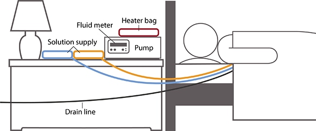 Drawing of person in bed next to a nightstand with a heater bag, fluid meter, pump, and two solution supply sources. Lines connect the solution supplies to the person. A drain line connects from the person and out of the frame of the drawing.