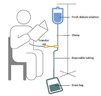Cartoon type image of person receiving dialysis with fluid bag, drain bag and catheter and stand