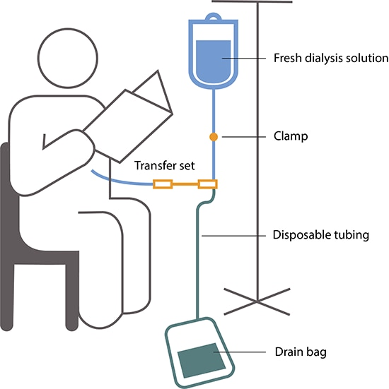 Drawing of a person reading during CAPD. A bag of fresh dialysis solution hangs from a pole and is connected to a tube that has a clamp. The tube connects to a transfer set, a disposable tube that connects to another tube that enters the person's abdomen. Tubing also connects from the transfer set to the drain bag on the floor.