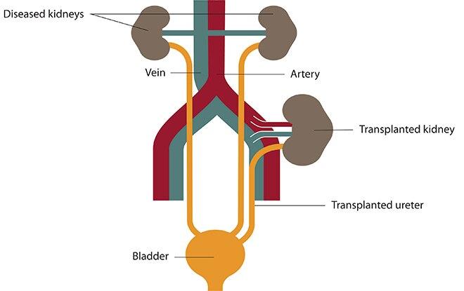 Kidney Transplant | NIDDK