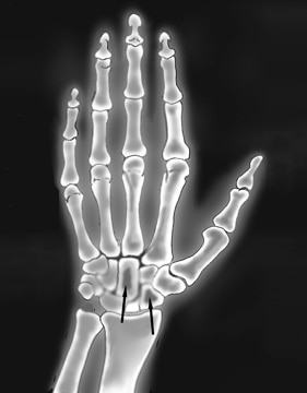 X-ray image of the hand and wrist, with arrows pointing to darkened areas in two wrist bones, indicating amyloid deposits.