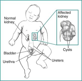 Kidney Dysplasia Niddk