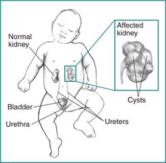 Kidney Dysplasia | NIDDK