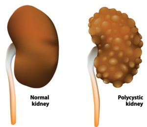 Polycystic Kidney Disease What Is Polycys...
