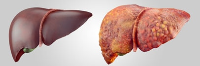 A healthy liver on the left and a diseased liver on the right.