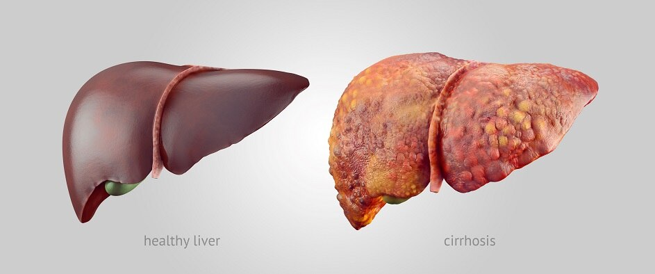 A healthy liver and a liver with cirrhosis.