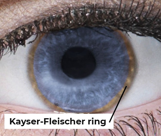 Close-up photo of an eye with a Kayser-Fleischer ring.