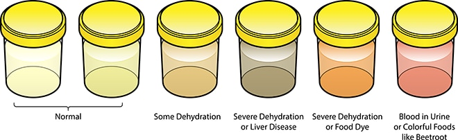 A series of urine samples. Light colored urine is normal. Deeper yellow urine suggests dehydration. Dark brown or orange urine suggests severe dehydration or liver disease. Urine that is pink suggests blood in the urine or having eaten beets. Odd urine color may also be caused by eating foods with large amounts of dyes.