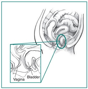 Bladder hanging out of vagina images 822