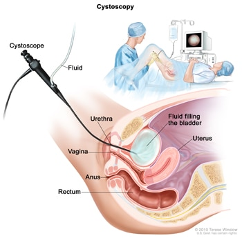 Illustration of cystoscopy. A cross-section shows the cystoscope inserted into the urethra. Fluid flows from a bag through the cystoscope to fill the bladder. The uterus, vagina, anus, and rectum are shown in the cross section.