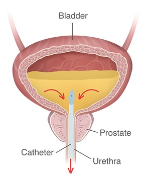 A bladder filled with urine, and a catheter inserted through the urethra and into the bladder, with arrows showing the flow of urine out of the bladder through the catheter.