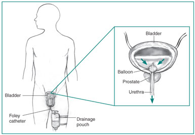 Outline of a male body showing the bladder, penis, drainage pouch strapped to one leg, and the inserted Foley catheter. Inset of the bladder, prostate, and urethra, showing urine flow from the bladder through the catheter.