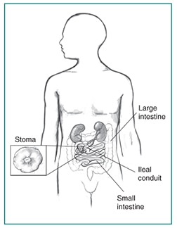 Drawing of an ileal conduit diversion, with stoma enlarged in inset box. Labels point to a stoma, large intestine, ileal conduit, and small intestine.