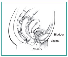 Drawing of a woman's pelvic area showing the vagina, bladder, and an inserted pessary.