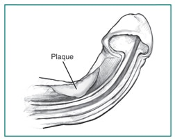 A cross section of a curved penis during an erection, showing the location of plaque.