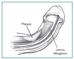 Cross section of a penis showing curvature caused by a plaque during erection.