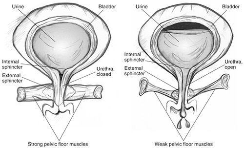 Separate illustrations of strong and weak pelvic floor muscles