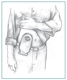 A man holding up his shirt to show a urostomy pouch attached to his abdomen.
