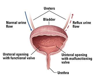 an illustration of a bladder, including the urethra and two ureters  one  ureter allows