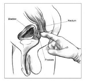 Diagram of male genitalia, rectum with doctor's finger insertion.