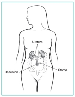 The continent cutaneous reservoir attached to the ureters and stoma.
